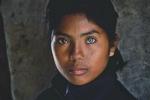 Cô gái có mắt hai màu kỳ lạ ở Ninh Thuận